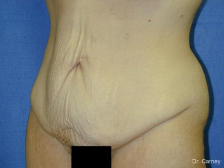 Virginia Beach Tummy Tuck 1249 - Before Image