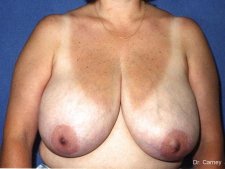 Virginia Beach Breast Reduction 1229 - Before Image