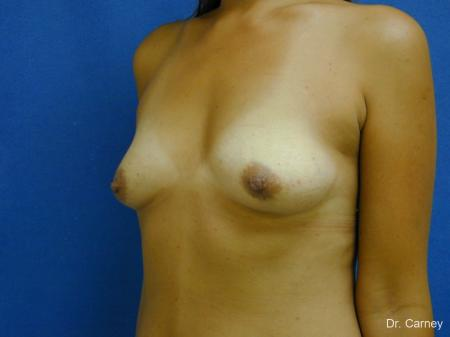 Virginia Beach Breast Augmentation 1860 - Before Image 4