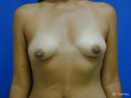 Virginia Beach Breast Augmentation 1860 - Before Image 1