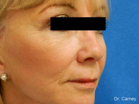 Virginia Beach Brow Lift 1266 -  After Image 1