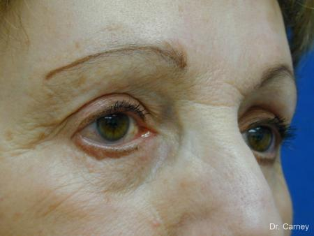 Virginia Beach Facelift 1133 - Before and After Image 3