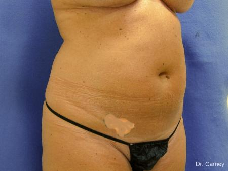 Virginia Beach Liposuction 1279 - Before Image