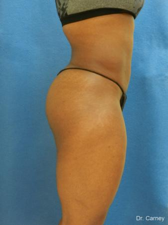 Brazilian Butt Lift: Patient 3 - After Image 1