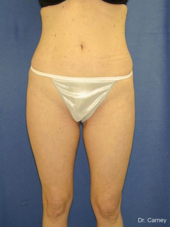 Virginia Beach Liposuction 1280 - After Image