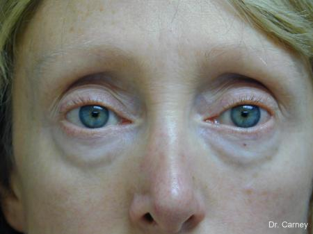 Virginia Beach Eyelid Lift 1079 - Before Image