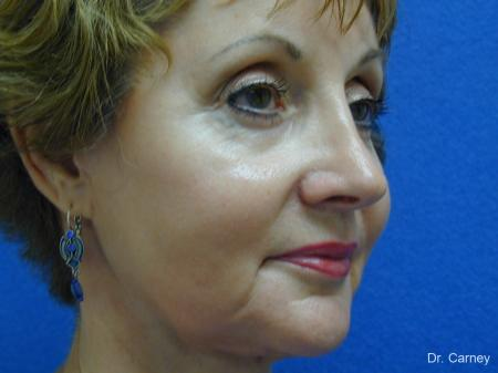 Virginia Beach Brow Lift 1216 -  After Image 1