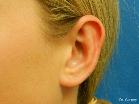 Virginia Beach Otoplasty Earlobe Repair 1223 -  After Image 1