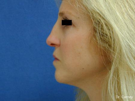Virginia Beach Rhinoplasty 1343 - Before and After Image 5