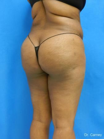 Brazilian Butt Lift: Patient 4 - After Image 4
