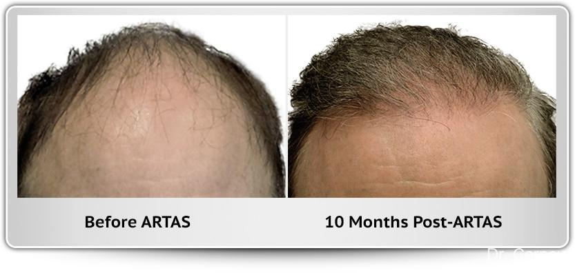 Hair Transplantation: Patient 14 - Before and After Image 1