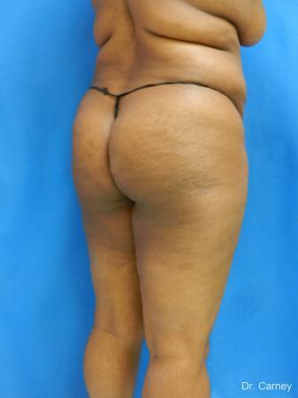 Brazilian Butt Lift: Patient 4 - Before Image 4