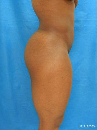 Brazilian Butt Lift: Patient 3 - Before Image