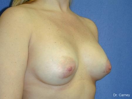 Virginia Beach Breast Augmentation 1083 -  After Image 2