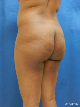 Brazilian Butt Lift: Patient 6 - Before Image 2