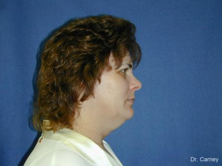 Virginia Beach Neck Lift 1269 - Before Image