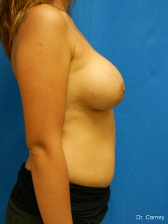 Virginia Beach Breast Augmentation 1860 -  After Image 3