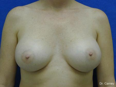 Virginia Beach Breast Augmentation 1084 -  After Image 3