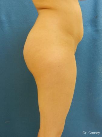 Virginia Beach Brazilian Butt Lift 1221 -  After Image 3