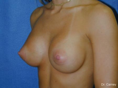 Virginia Beach Breast Augmentation 1080 -  After Image 2