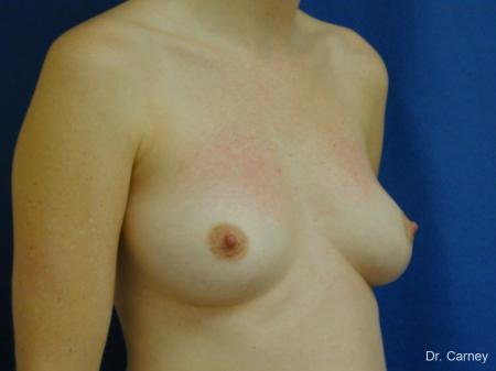 Virginia Beach Combo Procedures Breast 1095 - Before and After Image 3