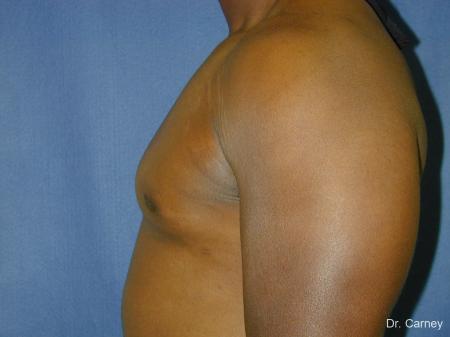 Virginia Beach Gynecomastia 1226 -  After Image 5