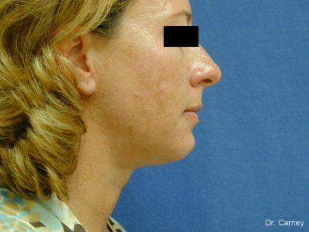 Virginia Beach Neck Lift 1267 - After Image