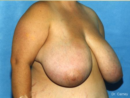 Virginia Beach Breast Reduction 1232 - Before Image 1