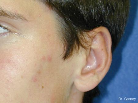 Virginia Beach Otoplasty Earlobe Repair 1271 -  After Image 3