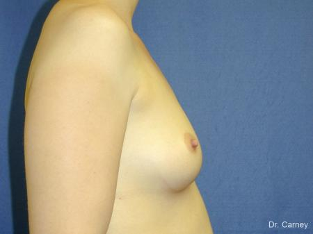 Virginia Beach Breast Augmentation 1086 - Before Image 1