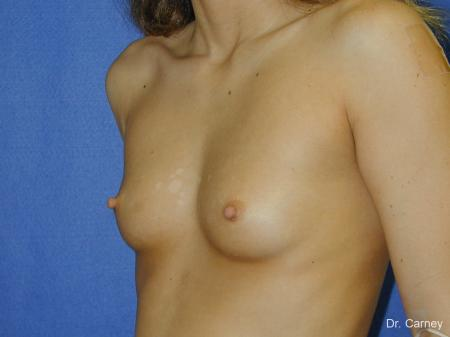 Virginia Beach Breast Augmentation 1097 - Before Image 2