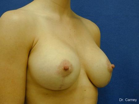 Virginia Beach Combo Procedures Breast 1099 -  After Image 3