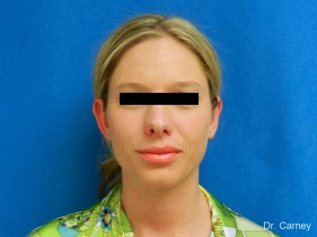 Virginia Beach Otoplasty Earlobe Repair 1223 -  After Image 2