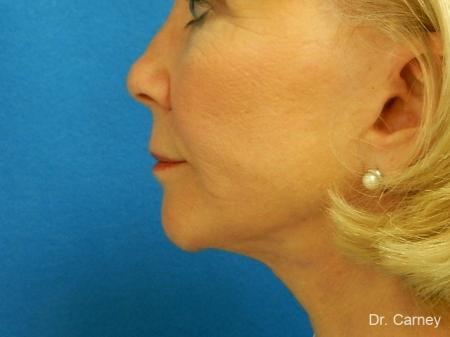 Virginia Beach Laser Skin Resurfacing - Face 1260 -  After Image 3