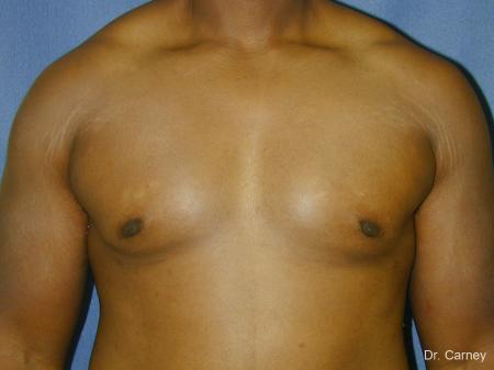 Virginia Beach Gynecomastia 1226 -  After Image 1