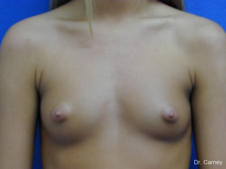 Virginia Beach Breast Augmentation 1082 - Before and After Image 3