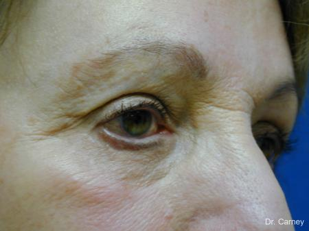 Virginia Beach Eyelid Lift 1128 -  After Image 2