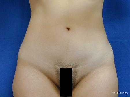 Virginia Beach Liposuction 1276 - Before Image