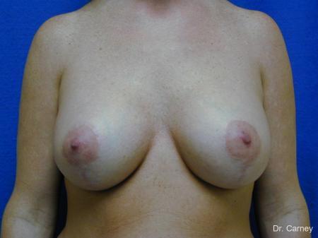 Virginia Beach Combo Procedures Breast 1093 -  After Image 2