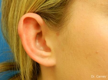 Virginia Beach Otoplasty Earlobe Repair 1223 -  After Image 4