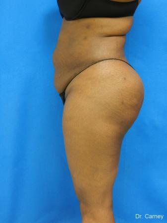 Brazilian Butt Lift: Patient 4 - After Image
