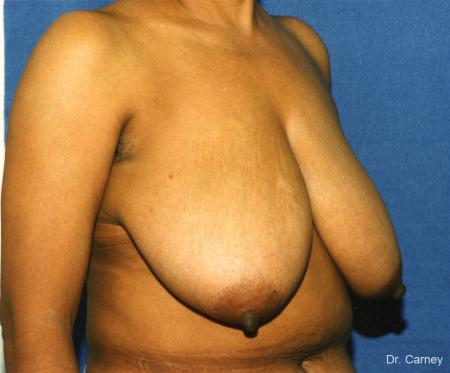 Virginia Beach Breast Reduction 1228. - Before and After Image 2