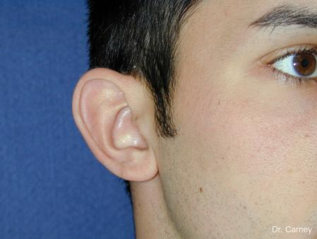 Virginia Beach Otoplasty Earlobe Repair 1222 - Before Image 3