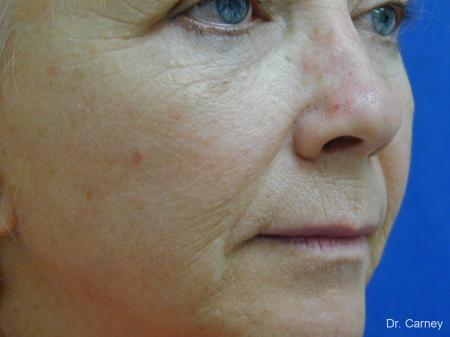 Virginia Beach Laser Skin Resurfacing - Face 1260 - Before Image