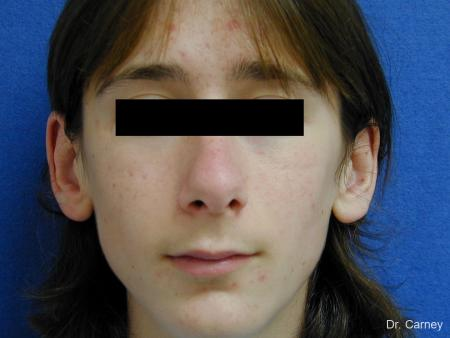 Virginia Beach Otoplasty Earlobe Repair 1271 - Before Image 1