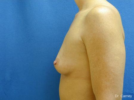 Virginia Beach Breast Augmentation 1214 - Before and After Image 5