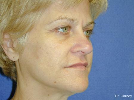 Virginia Beach Brow Lift 1345 - Before Image