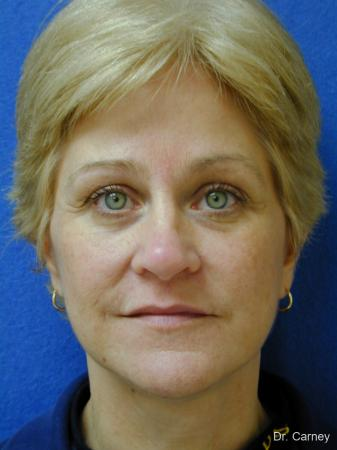 Virginia Beach Facelift 1346 - After Image