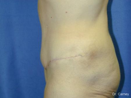 Virginia Beach Tummy Tuck 1249 -  After Image 3