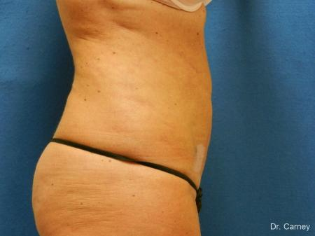 Virginia Beach Liposuction 1279 -  After Image 2
